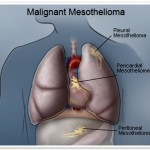 Funds to Compensate Victims of Mesothelioma and Asbestos Related Cancers