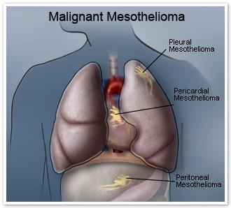 malignant mesothelioma attorney cancer attorney